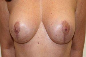 Manhattan Breast Lift after 2